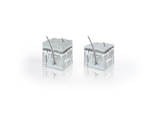 Diamant Mikrodermabrasion Hautbild